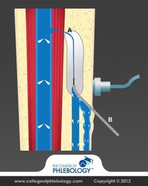 Laser Varicose Vein treatment