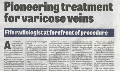 Pioneering treatment for varicose veins