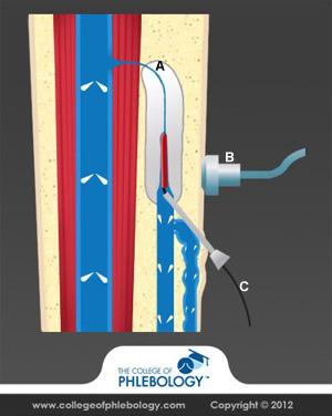 Radio frequency varicose vein treatment